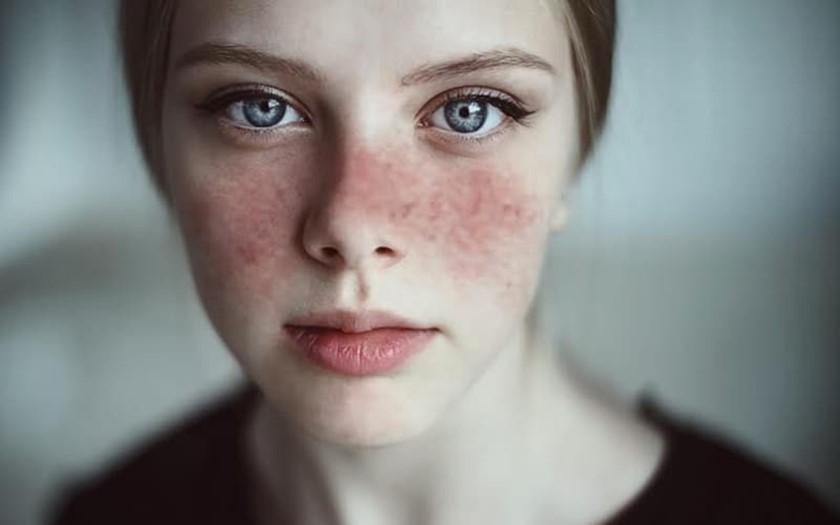 Metabolismo anormal del hierro y disfunción mitocondrial en el lupus eritematoso sistémico